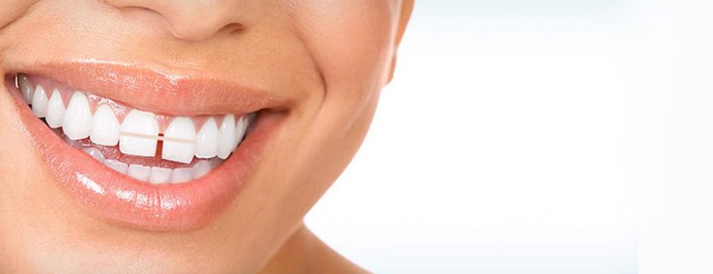 رفع فاصله بین دندانی
