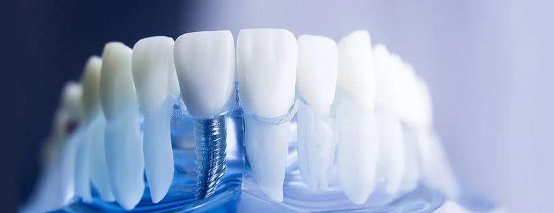 ایمپلنت یا کاشت دندان