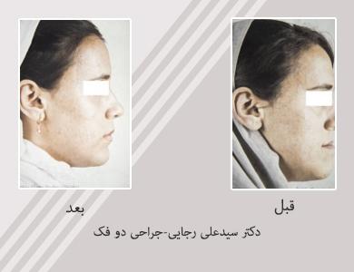 جراحی دو فک-دکتر سیدعلی رجایی