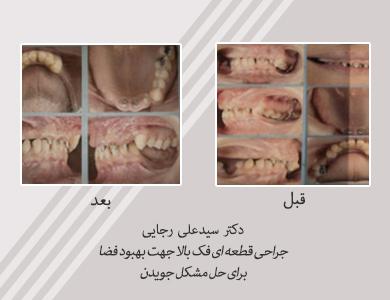 Maxillofacial-Surgery-7