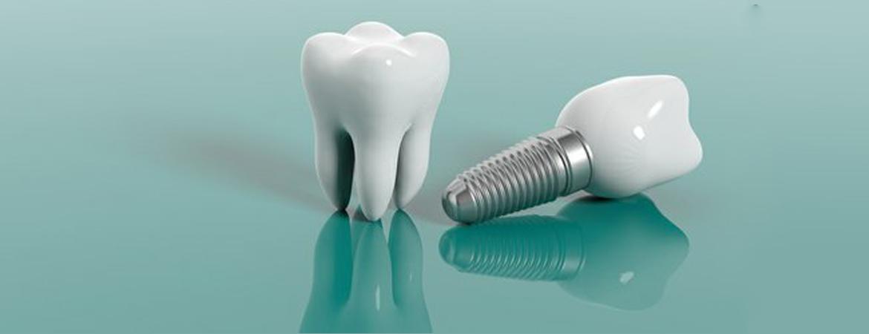 مراقبت های پس از کاشت دندانن