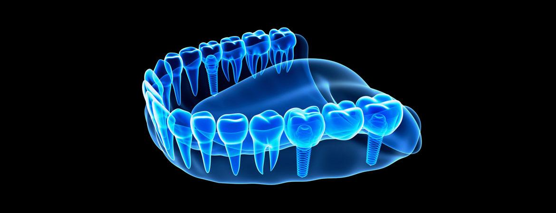 نکاتی در رابطه با مراقبت های پس از انجام ایمپلنت دندان
